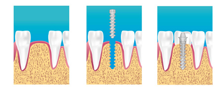 implants dentaires marseille 13003 13015 13002